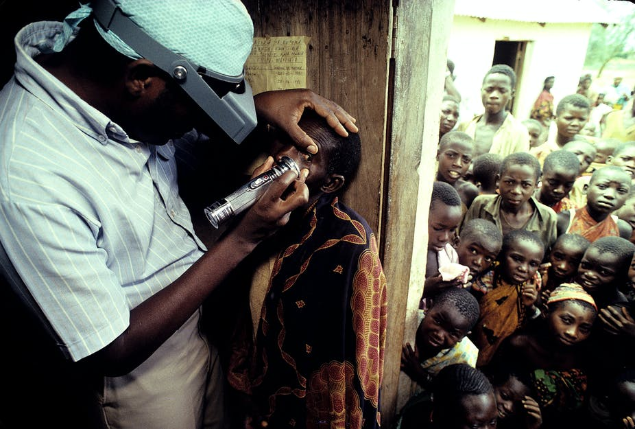 A Ministry of Health worker with opthamology training, Sidney Katala, examines a child for signs of tracoma 1992 in Kongwa, Tanzania.