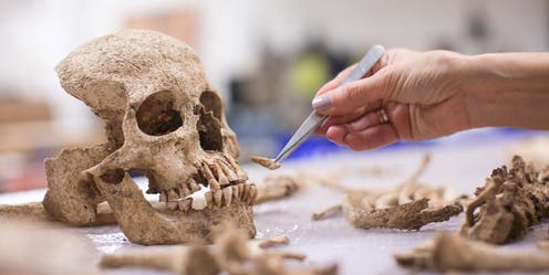 A incomplete skull and bone parts.