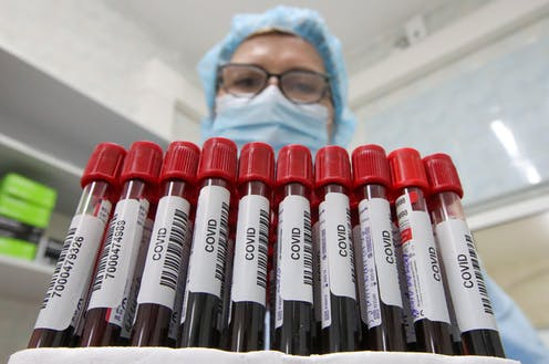 A healthcare worker holds vials with blood samples while performing laboratory tests which detect immunoglobulin class G (IgG) antibodies to SARS-CoV-2 virus in blood