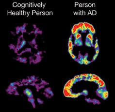 fda alzheimers drug, PET scan showing the brain of a cognitively healthy person and person with Alzheimer's disease.