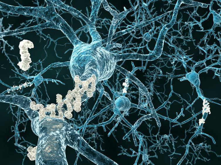 3D image of neurons with amyloid plaques