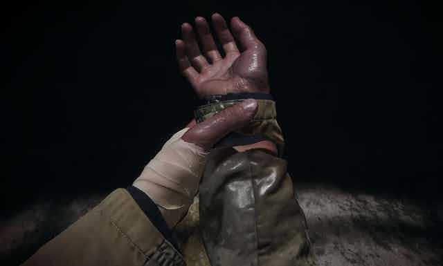 A bandaged hand grips the other hand.
