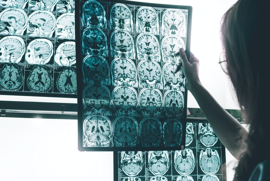 Female doctor examines MRI scans of the brain.