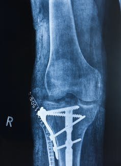 An X-ray of a knee shows elaborate hardware including four long screws in the lower bone and a series of staples near the hardware