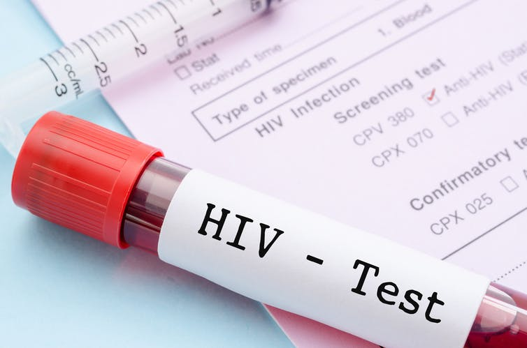 Blood sample labelled with HIV - Test