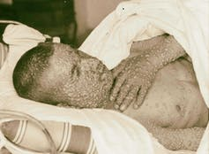 19th-century photo of a smallpox patient