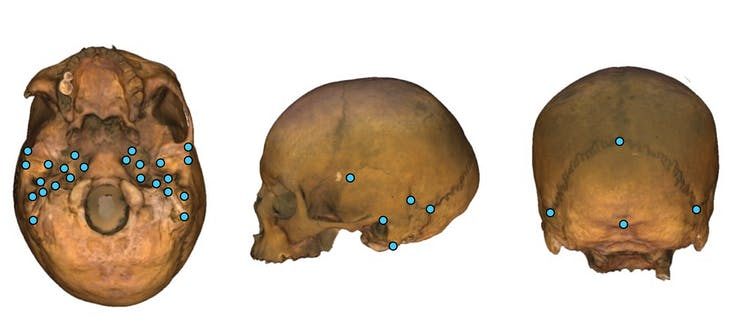 Three images of a skull from different perspectives