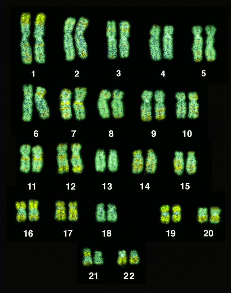 The 22 chromosomes of the human genome.