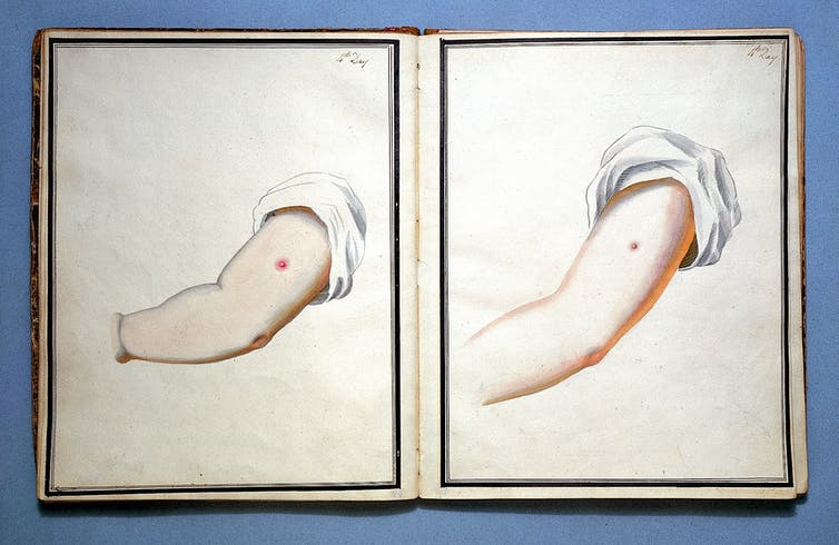 Drawings showing smallpox and cowpox inoculation.