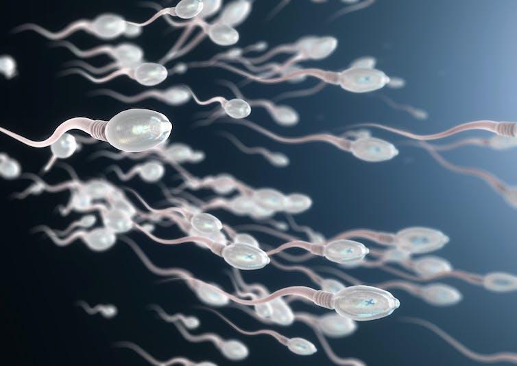 Una ilustración de espermatozoides humanos.