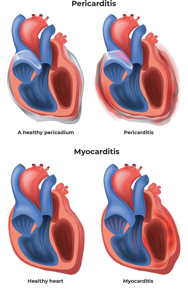 A heart diagram with an inflamed pericardium (pericarditis) next to a heart with inflammation showing myocarditis.
