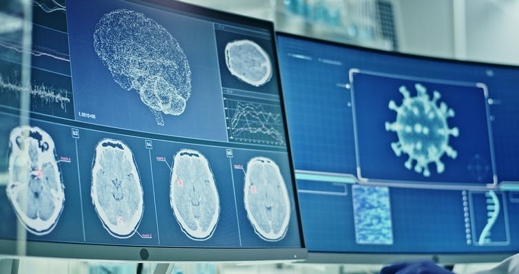Screens displaying coronavirus and brain wave research