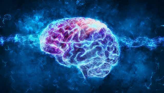Brain image with dark packground.