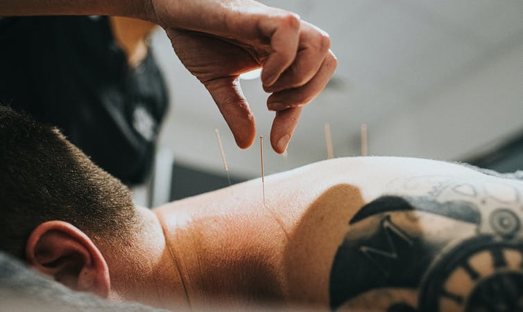 Health care provider performing acupuncture on a person's back.
