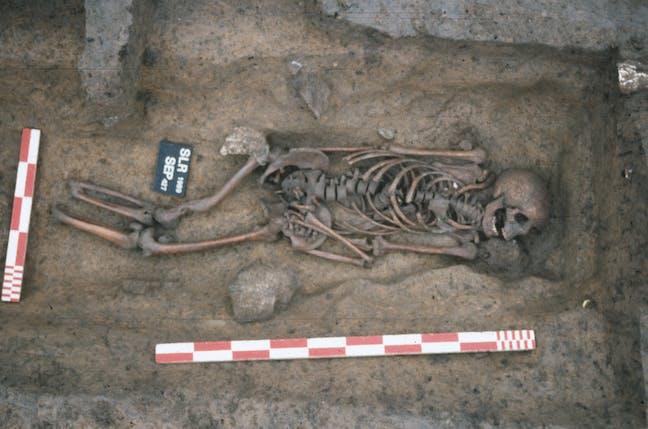 Sépulture d'un sujet amputé des deux membres inférieurs de la nécropole du haut Moyen-Âge de Serris-les-Ruelles (Seine-et-Marne) © F. Gentili / Inrap (via The Conversation)