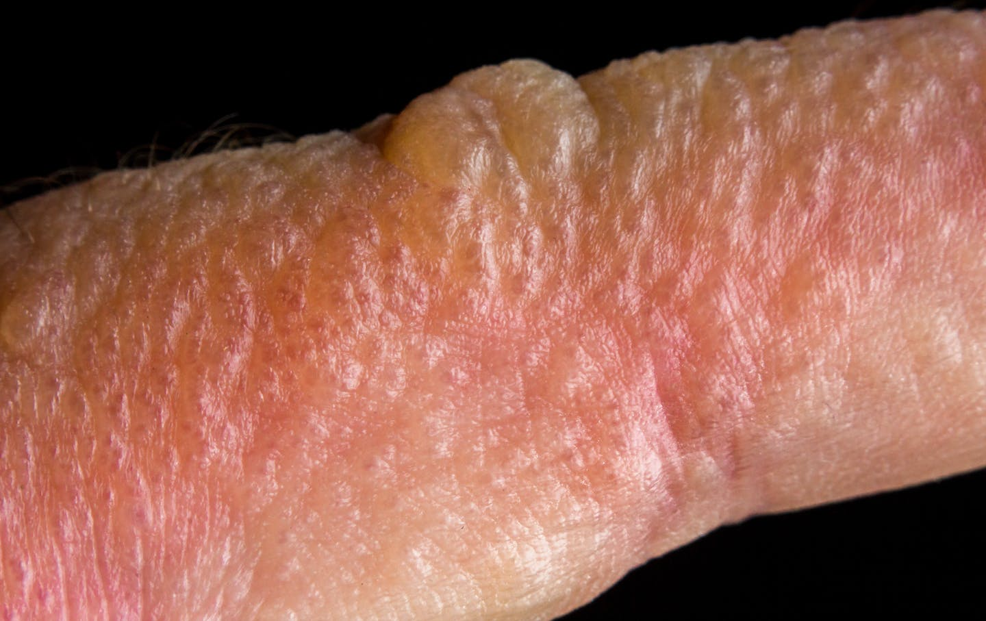 pink rash with blisters on skin close up