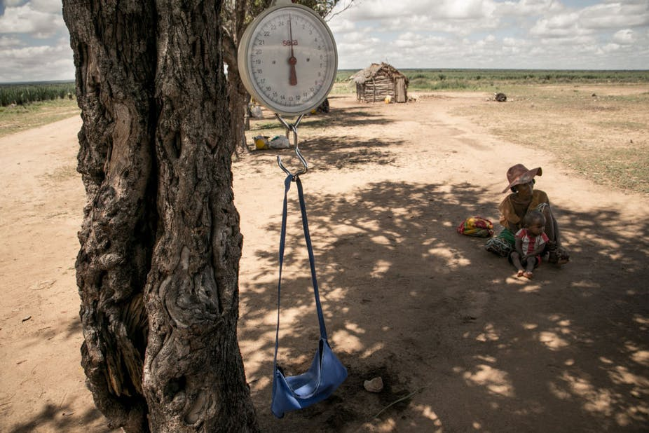 A baby scale is hung on a tree branch during a malnutrition screening session in the municipality of Ifotaka, in southern Madagascar