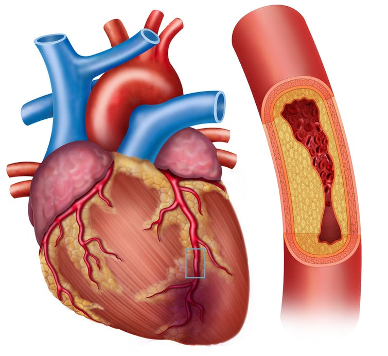 Coronary arteries clogged with plaque.