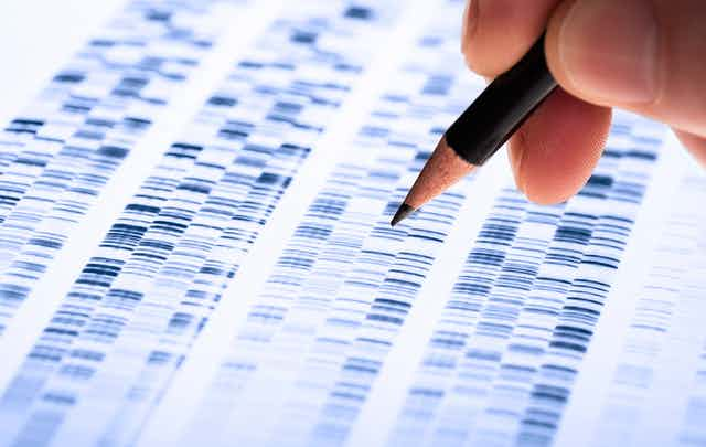 A genetic test result - showsn as a DNA gel