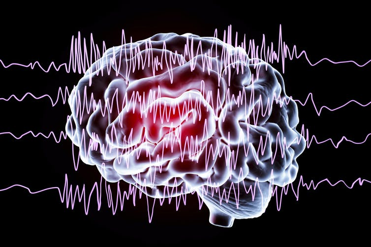 A drawing of a brain set above sound waves.
