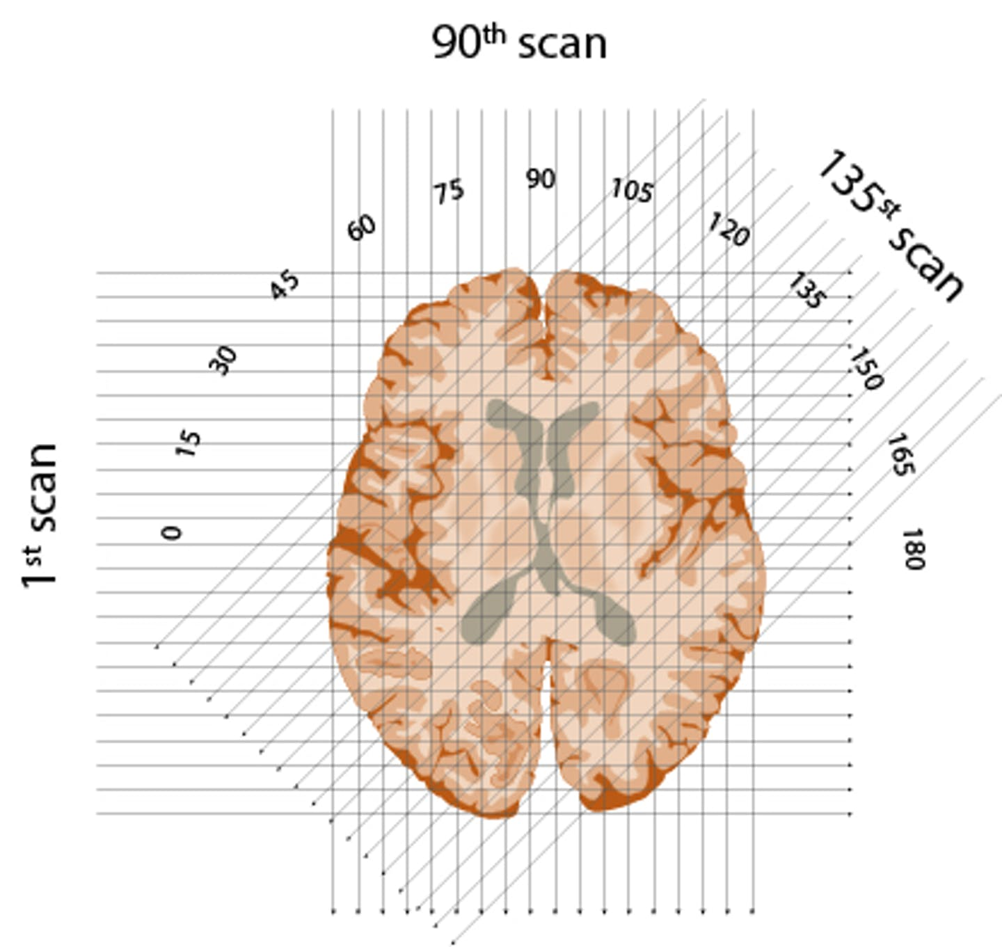 schematic of three X-ray beams through one 'slice' of brain