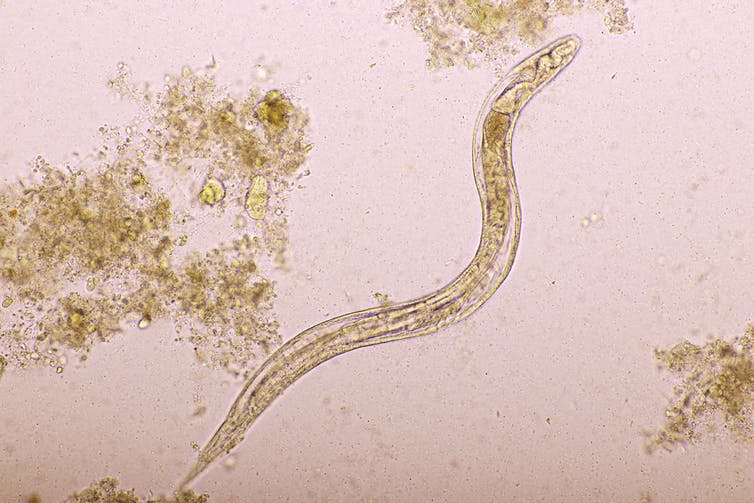 Microscopic image of strongyloides stercoralis in human stool
