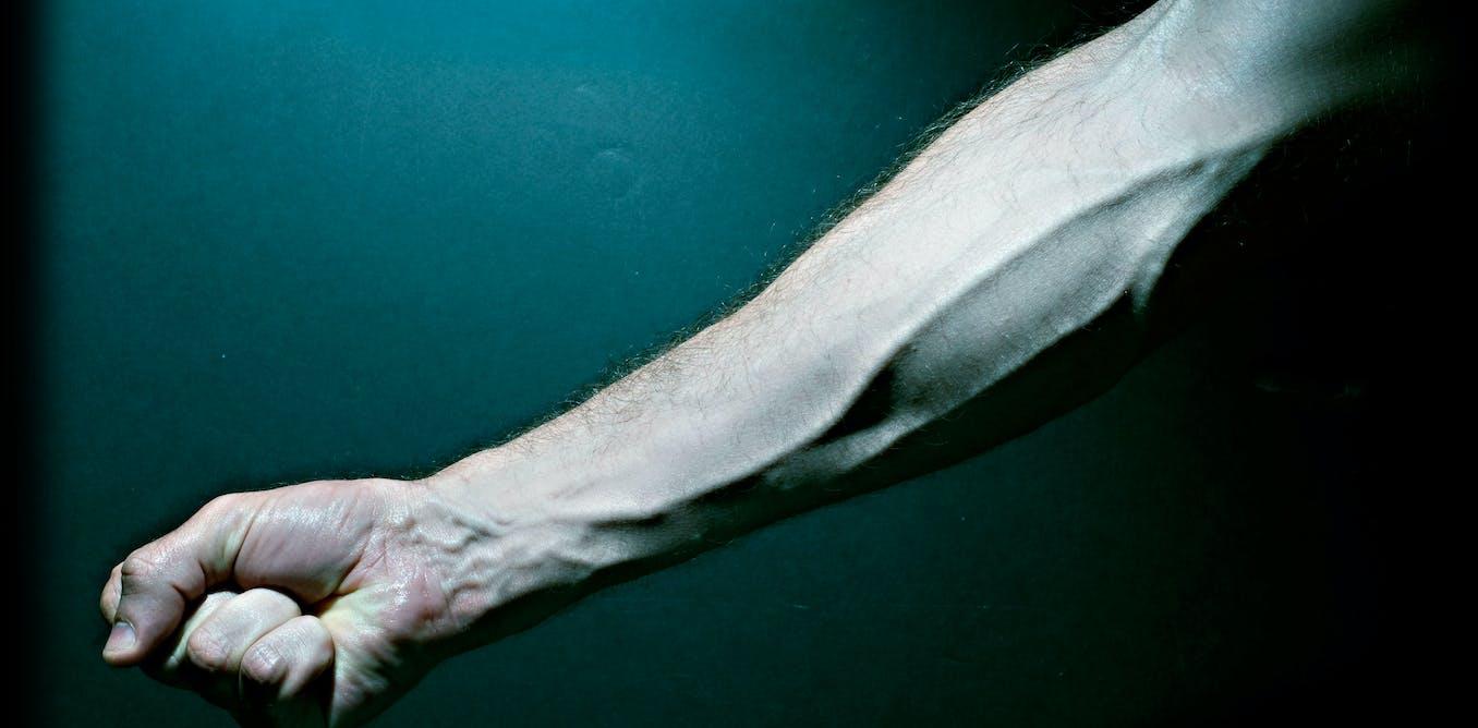 Eliminați papiloma saratov. Warts on hands from gym