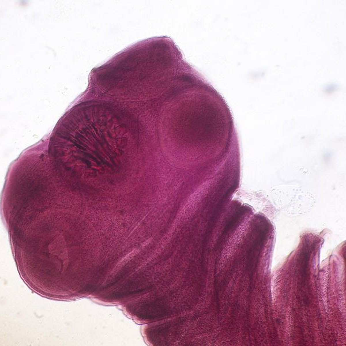 The top ten parasites that could be lurking in your food