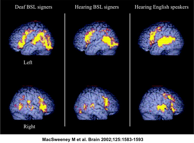 what sign language teaches us about the brain