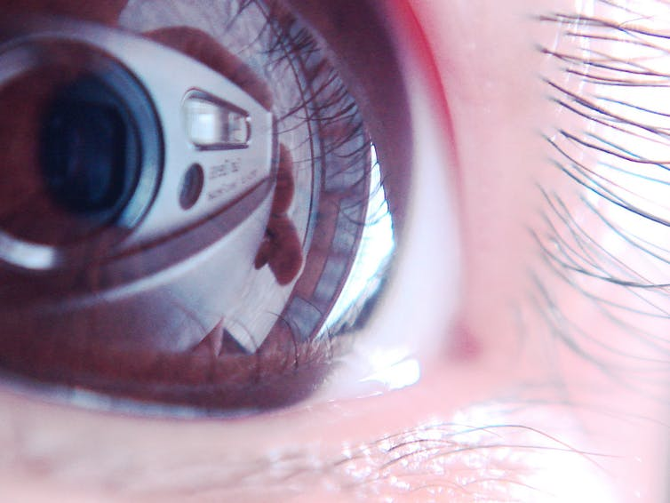 bionic eye An eye implant is restoring vision in blind people but what do they see.