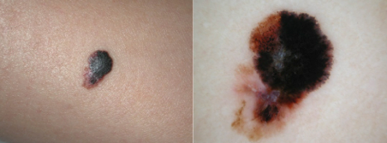 Spot the difference: harmless mole or potential skin cancer?