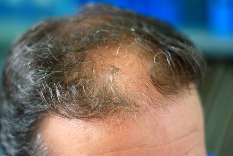 Starting to thin out? Hair loss doesn't have to lead to baldness