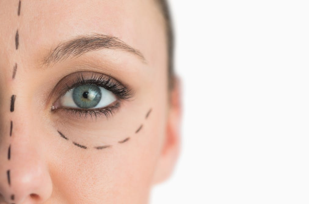 The five most surprising cosmetic surgery trends across the globe