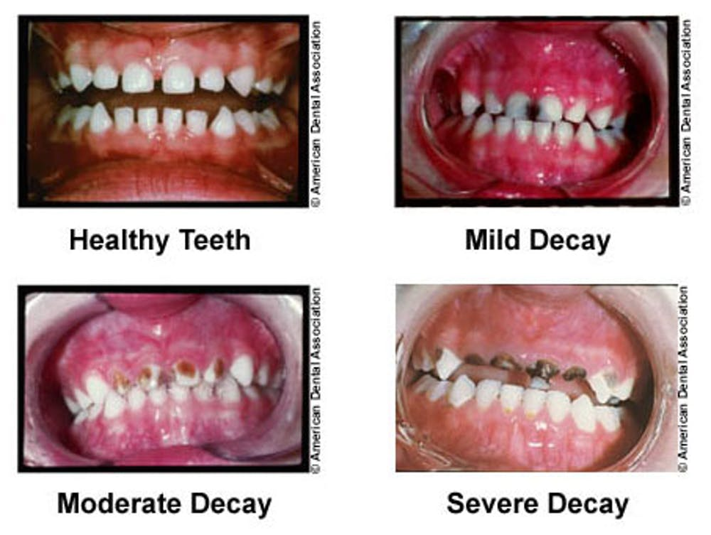 Studying tooth enamel nanostructure may lead to less time