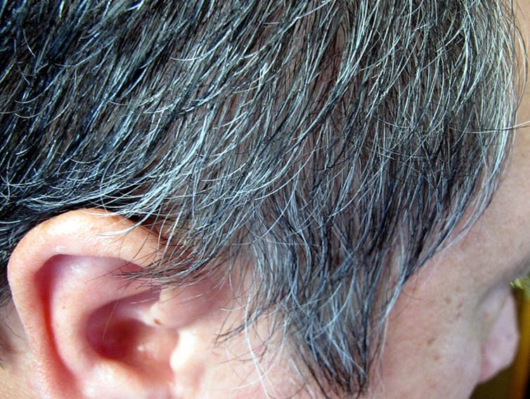 Health Check Why Does Hair Change Colour And Turn Grey