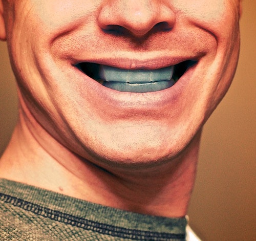 What Happens When Teeth Whitening Goes Wrong