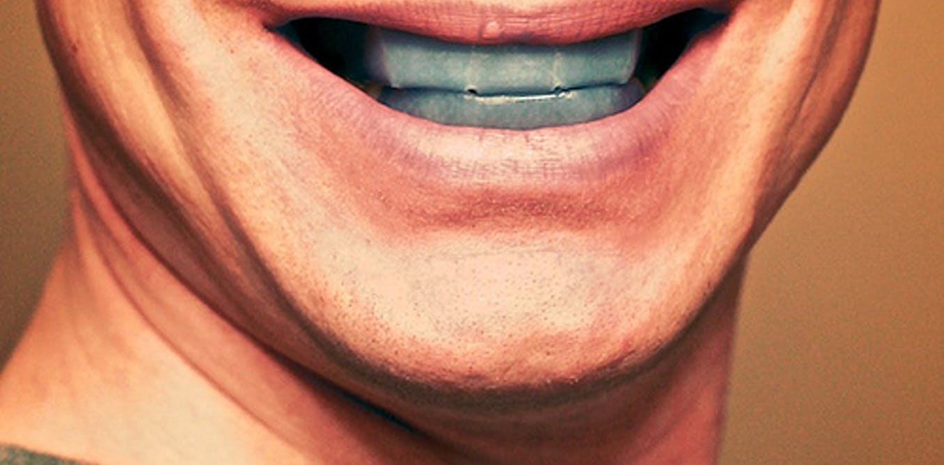What happens when teeth whitening goes wrong?