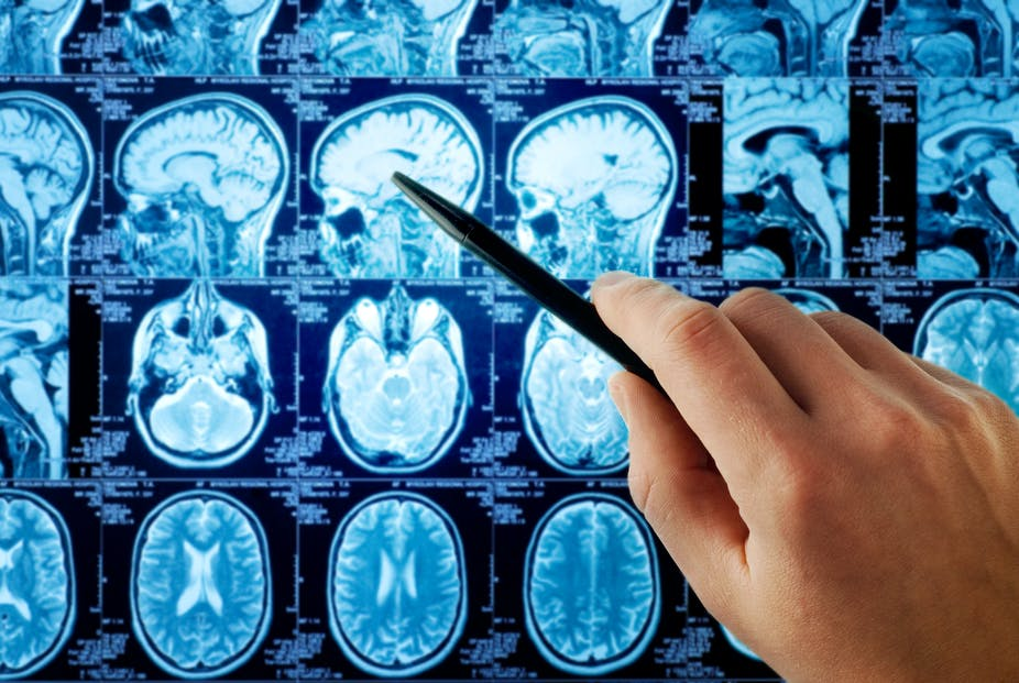 Have a brain tumor? The kind of insurance you have might make a