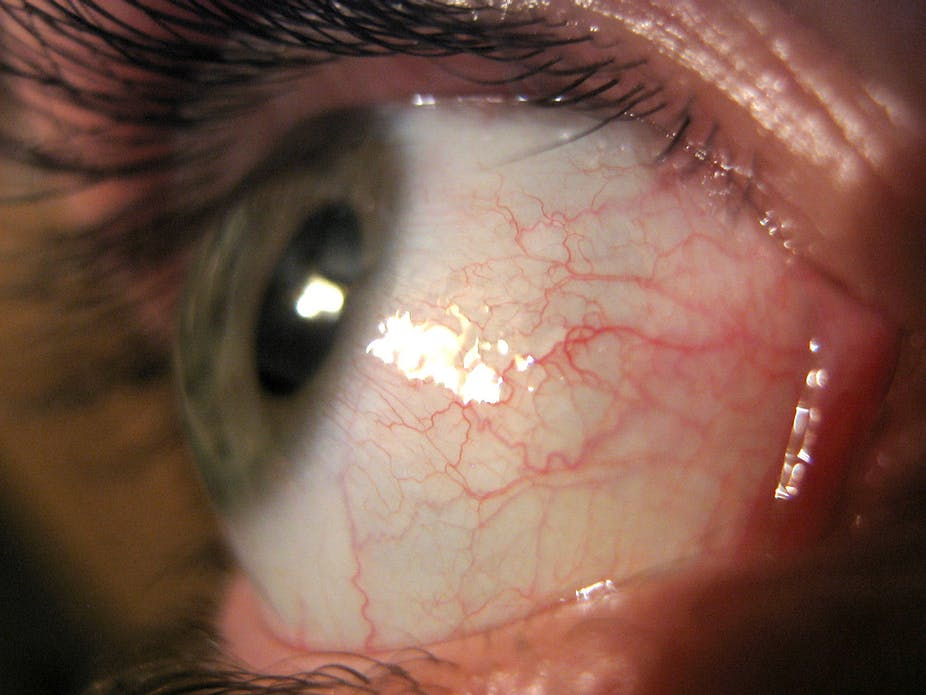 The eye-opening parasite that can get in through your