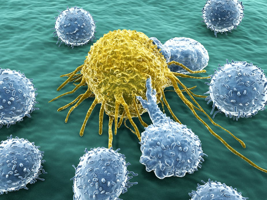 How Weaponising The Bodys Immune System Can Deliver A Cure For Cancer