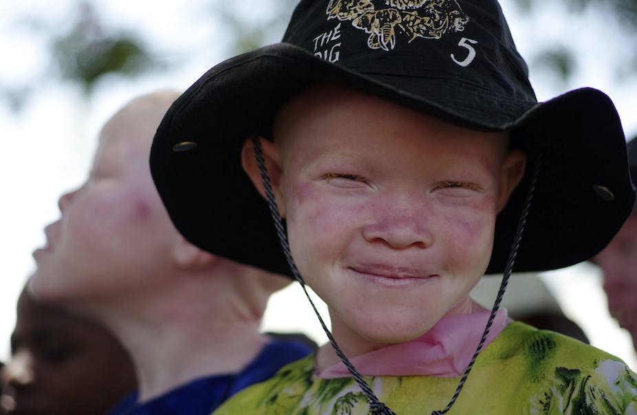 Africa needs a health policy to help people with albinism ca30ee83af7a