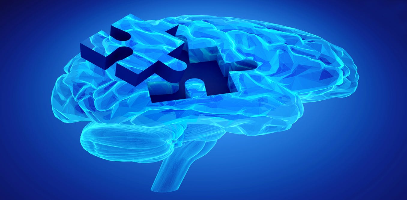 Research paper on alzheimer's disease