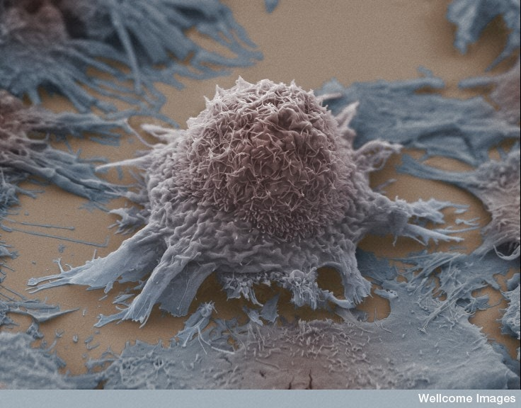Fasting may improve cancer treatment, but needs further ...
