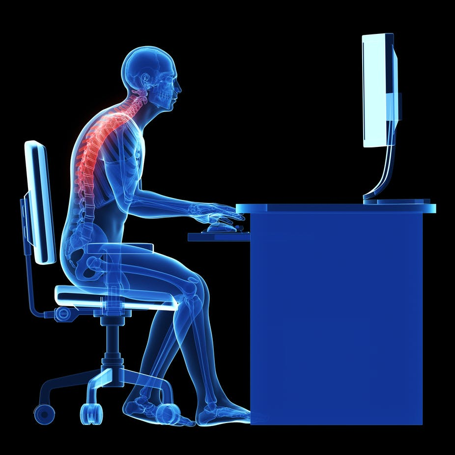 Explainer Can You Cure Bad Posture